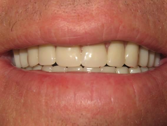 case-9-after-dentures