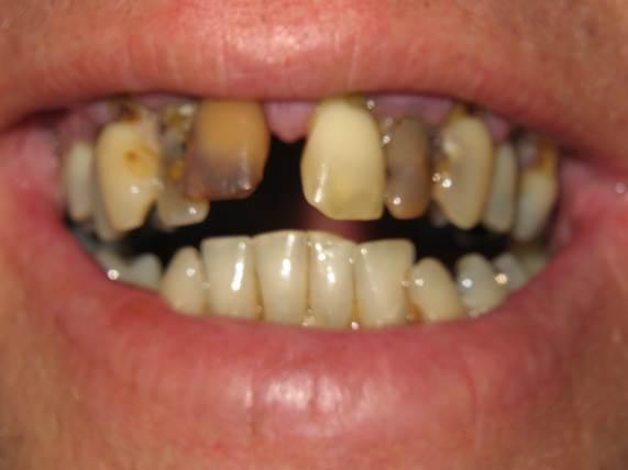 case-9-before-dentures