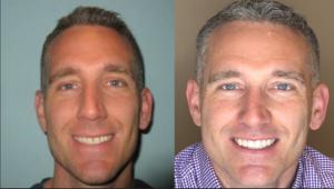 Teeth Veneers Before and After - Endres Gateway Dentistry Montgomery OH